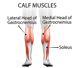 calf muscle reduction surgery partial muscle removal